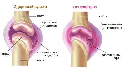 térdízület duzzanata artrózissal
