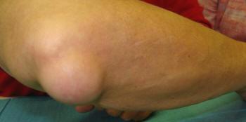 csukló bursitis kezelés)