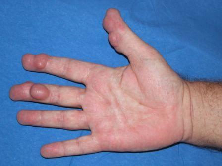 Térd arthroso-arthritis, Múmia receptek ízületi fájdalmakhoz