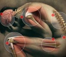 ízületi vitaminok a rheumatoid arthritisben