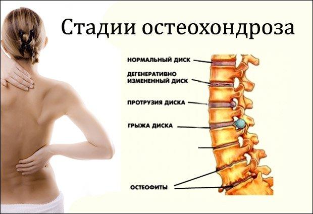 gyulladásgátló gyógyszer méhnyakcsonti osteochondrozishoz)
