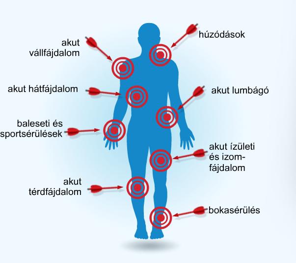 ízületi fájdalomcsillapító por korai artrózis a térd