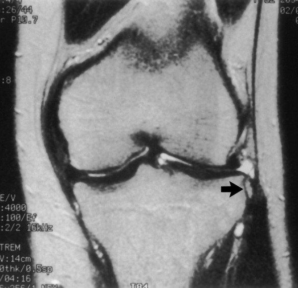 a térd condyle-törése térd instabilitás nincs fájdalom
