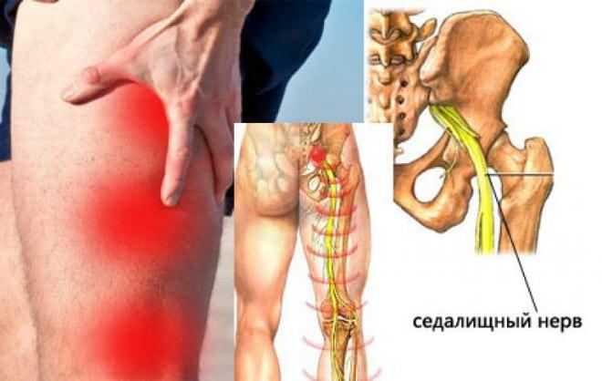 Fájdalom a térdkalácsban? A futótérd nem csak futókat érint