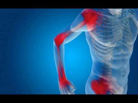 Rheumatoid arthritis - Egészség   Femina