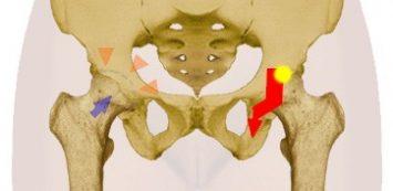 fájdalom a csípőízület nyugalomban)