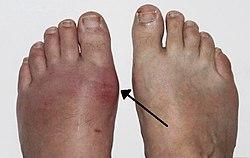 a köszvény gyógyítása 1 fokos térdízület artrózisa mi ez