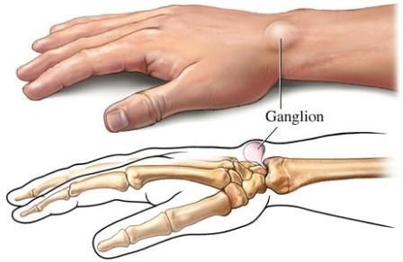 a csuklóm   Csuklótáji inhüvely-izületi ciszta (ganglion)?   Dr. Sallai Péter