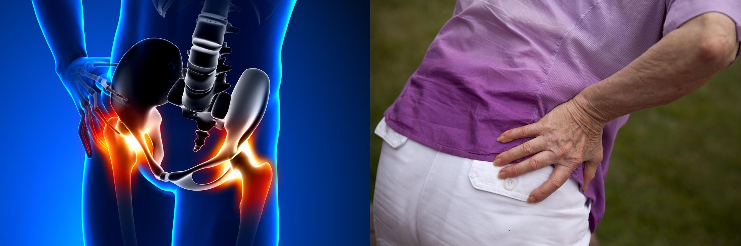 pyelonephritis és a csípőízület fájdalma