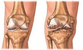 fájdalom a könyökízületben artrózisos kezeléssel)