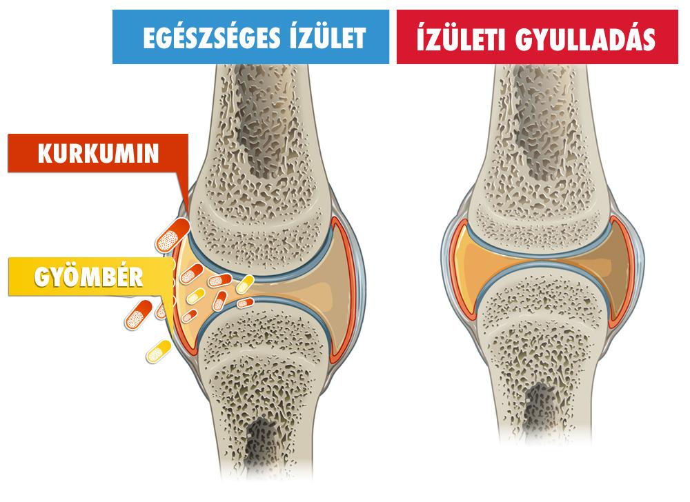 térd ízületi költségek a láb lábának ízületi gyulladása