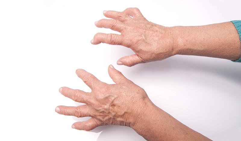 súlyos fájdalom a jobb kéz ízületeiben)