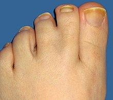 összenőtt lábujj jelentése