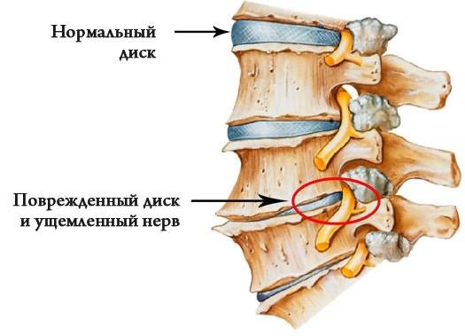 Artrózis a láb második fokának - Masszázs
