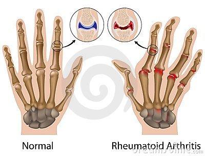 fájdalom és az ujjak ízületeinek deformációja)