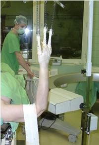 kezelés csukló törés után