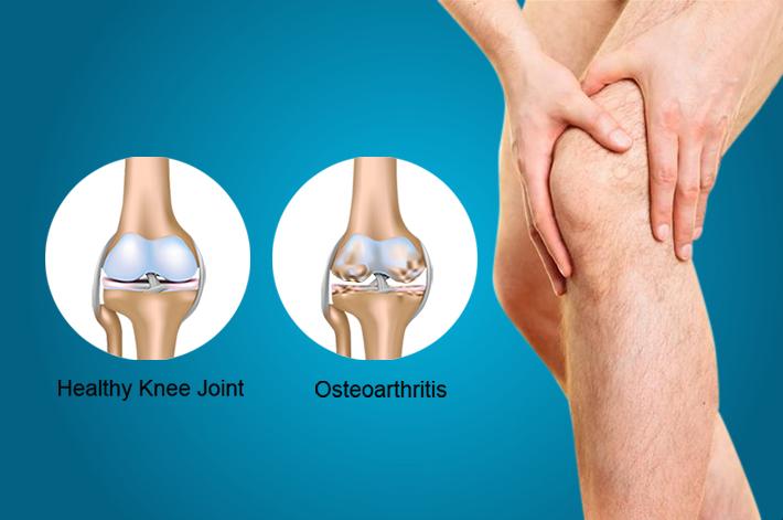 ízületi fájdalom térd gyógyszer rheumatoid arthritis krém