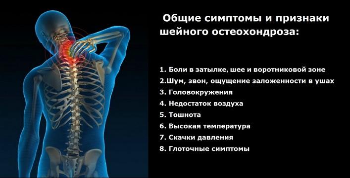 nyaki osteochondrozzal járó fejfájás készítmények)