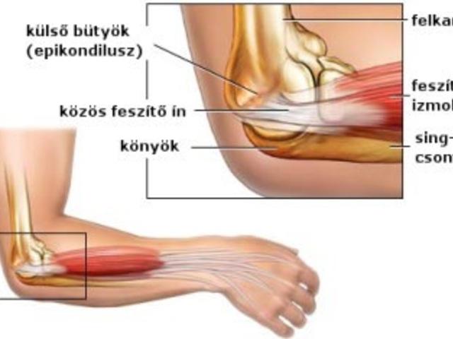 tükröződött könyökfájdalomkezelés fájdalmas ujjak ízületei hogyan kell kezelni