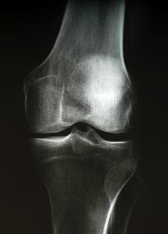 térd artrózis egy tinédzserben)