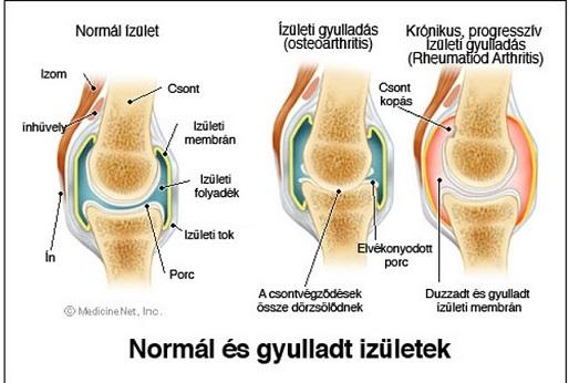 térdízület kezelése ízületi gyulladás