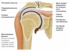 Hogyan különbözik az akromioclavicularis artroszája a sternoclavicularis artrózisától?