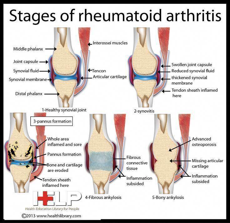 rheumatoid arthritis ízületi kezelés)