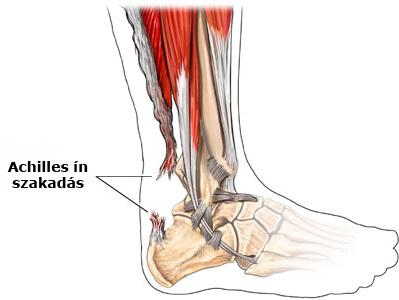 Achilles-ín gyulladás – Okok, tünetek és kezelés   BENU Gyógyszertárak