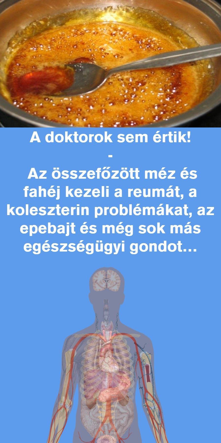 torna minden ízület fájdalmához)