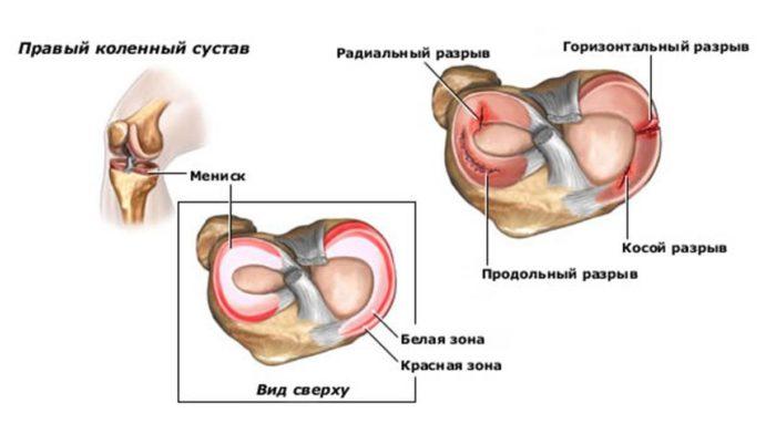 chondroprotector károsodása a térd meniszkuszában)