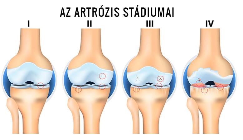 ii. fokú hatékony kezelés artrózisa)