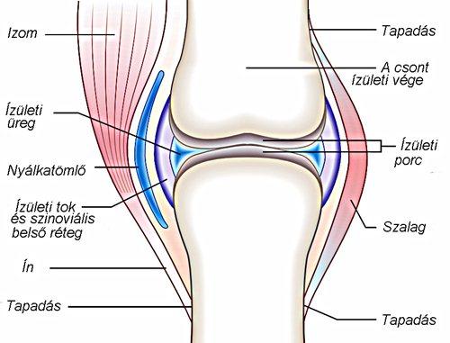 fájdalom és duzzadt ízületek a csípőízület 3. fokú artrózisának kezelésére