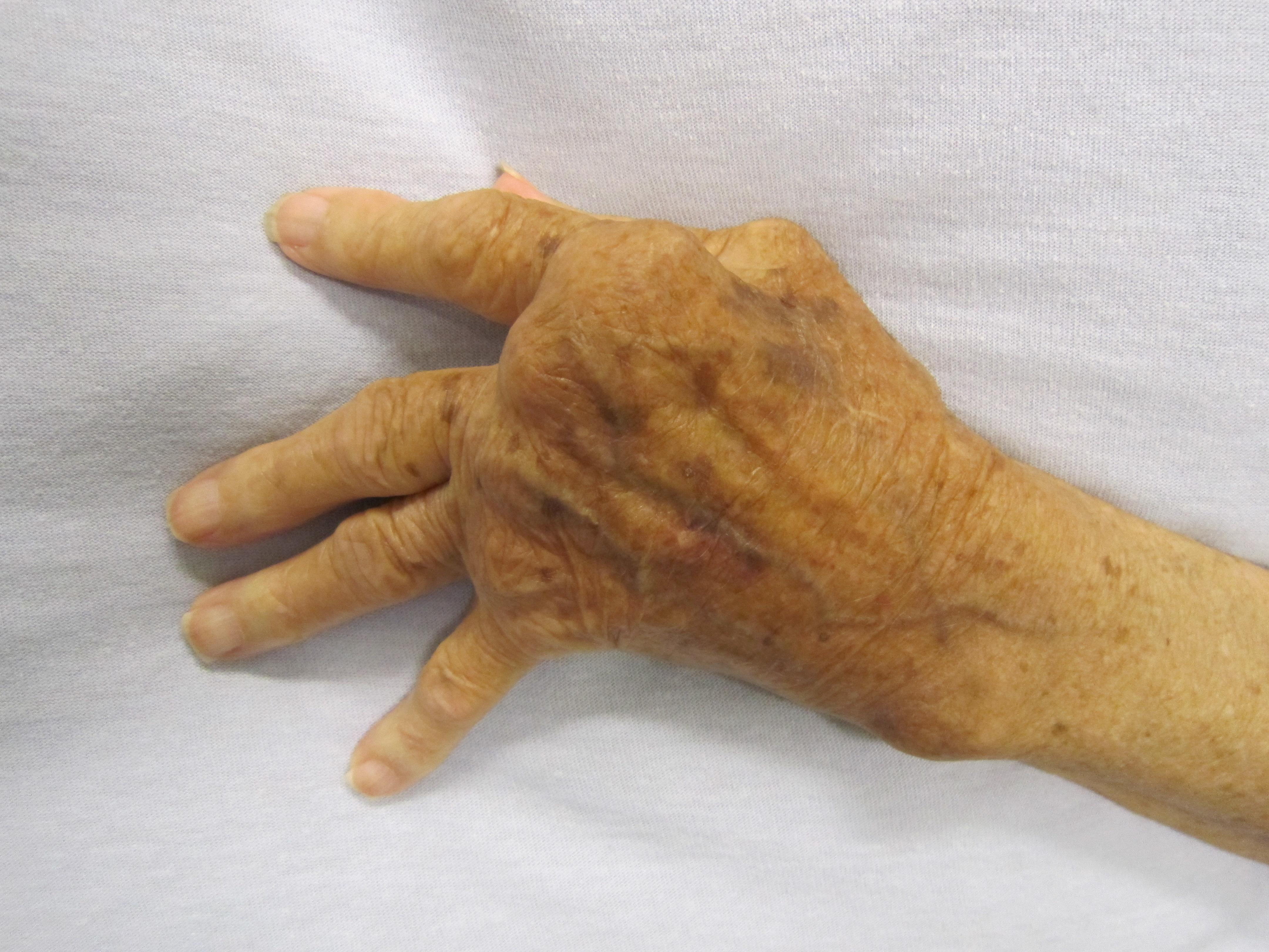 rheumatoid arthritis a kezén)