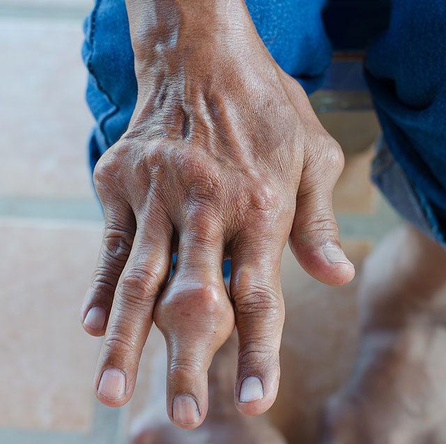 a bal kéz középső ujjának ízületi gyulladása)