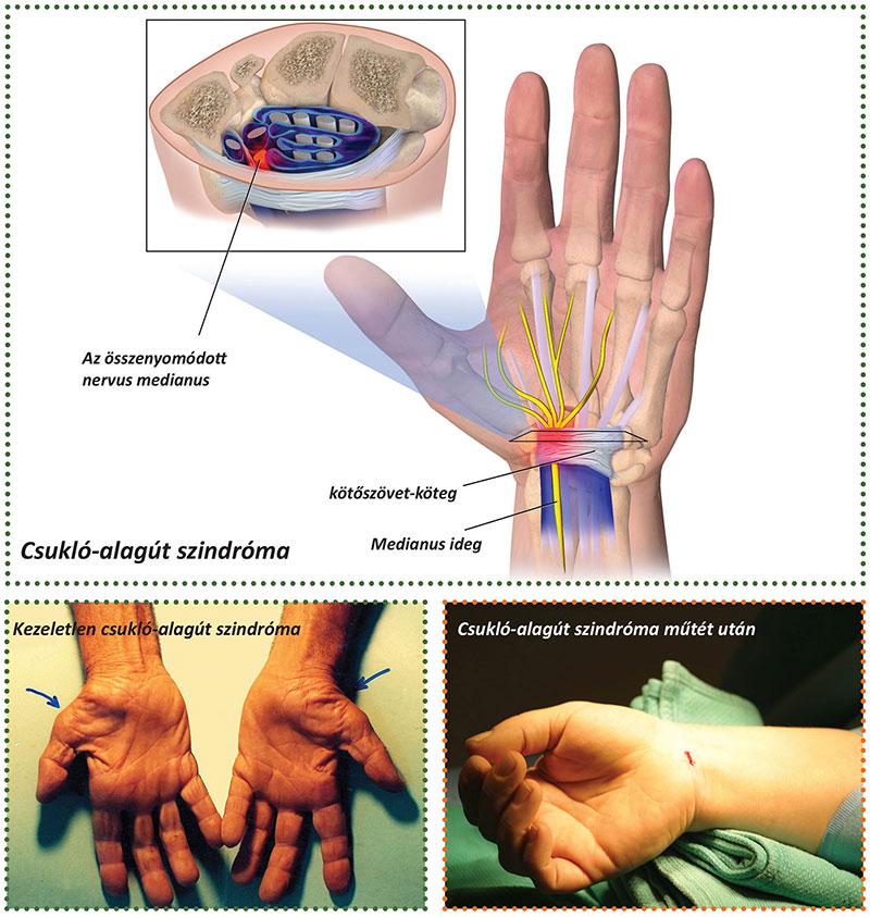 az ujjízület mozgásának helyreállítása)