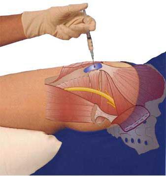 a csípőízületek sérülés után fájnak közös kezelés evdokimov szerint