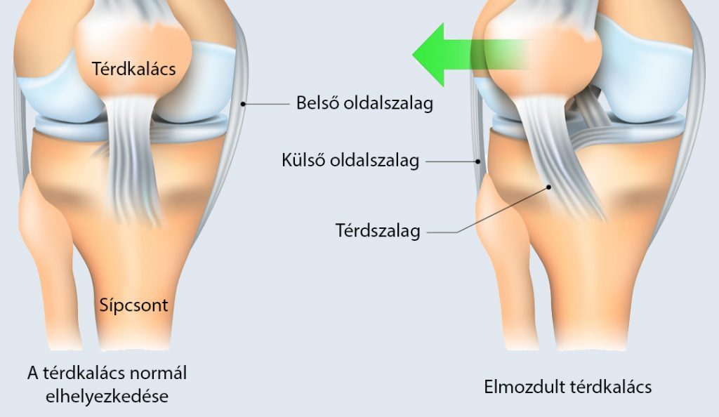 a térdkárosodás tünetei