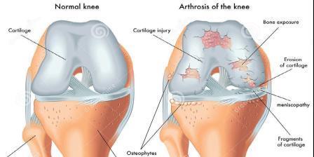 ahol jobb a térdízület artrózisának kezelése)