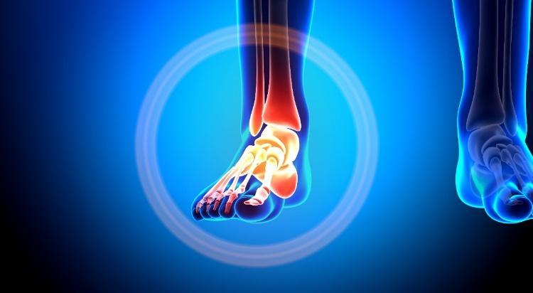 fájdalom a bokaízület séta közben