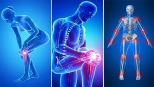 milyen kenőcsöt kell vásárolni nyaki osteochondrozishoz ízületi fájdalmak és ínszalagok