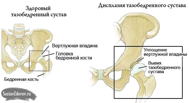 a csípőízület artrózisának tünetei 1 fok