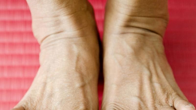 az egyik láb ízülete fáj)