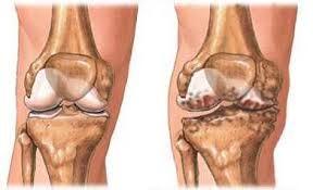 artrózis a könyökízület 1. szakaszában)