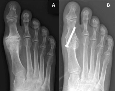 mild first metatarsophalangeal osteoarthritis)