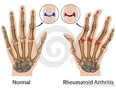 a lábak ízületeinek duzzanata és a kezek kezelése