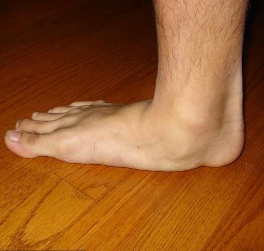 boka fájdalom lapos lábakkal)