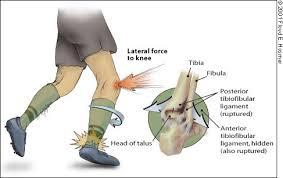 problémák a boka törésével