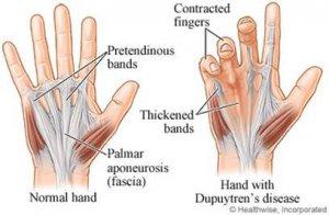 miért fáj az ujjak és a lábujjak ízületei)