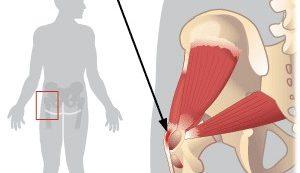 a csípő dysplasia kezelése után)