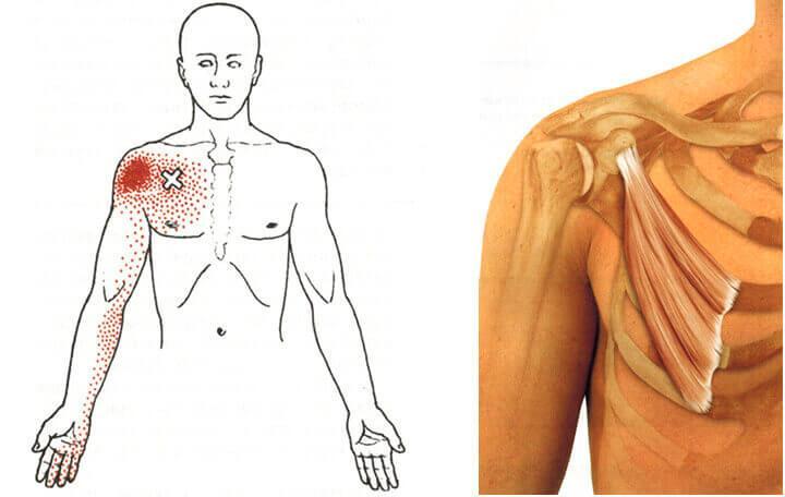 a vállízület deformált artrózisának kezelése